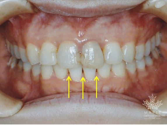 矯正歯科治療後のブラックトライアングル