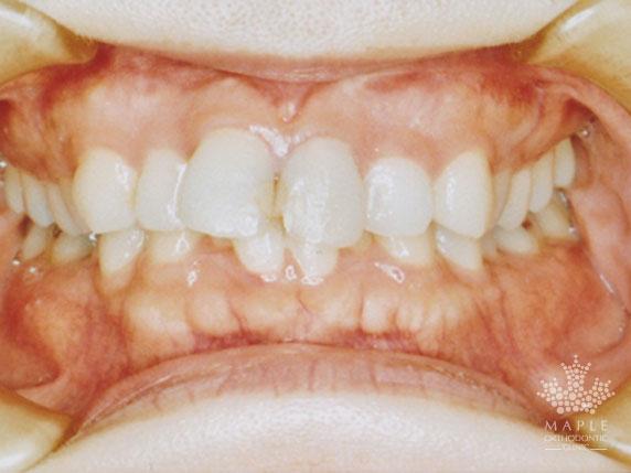 矯正歯科治療前(正面)